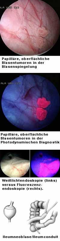 polypen in der blase bei frauen