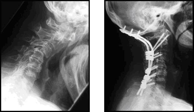 Die rheumatische Halswirbelsäule - Klinikum Dortmund gGmbH